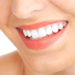 5 Tips to brighten smile