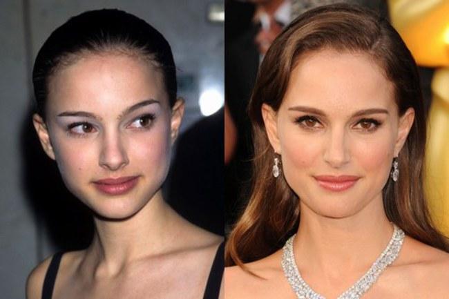 Natalie Portman Nose Job