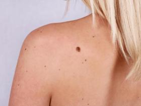 Remove A Mole Without Surgery min