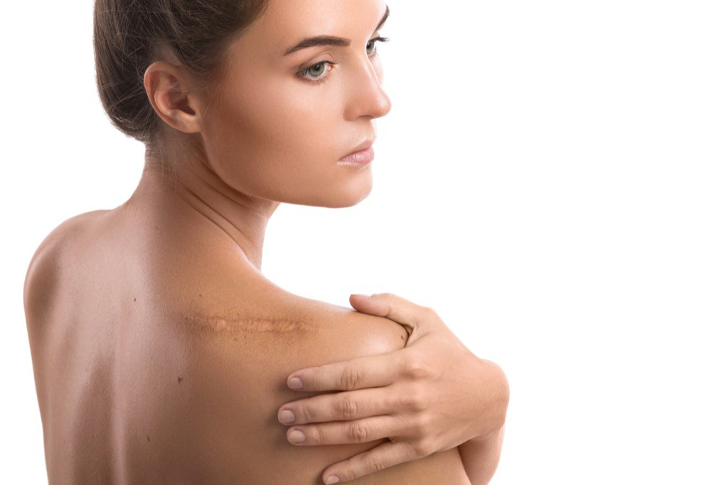 Preventing Keloid Scars