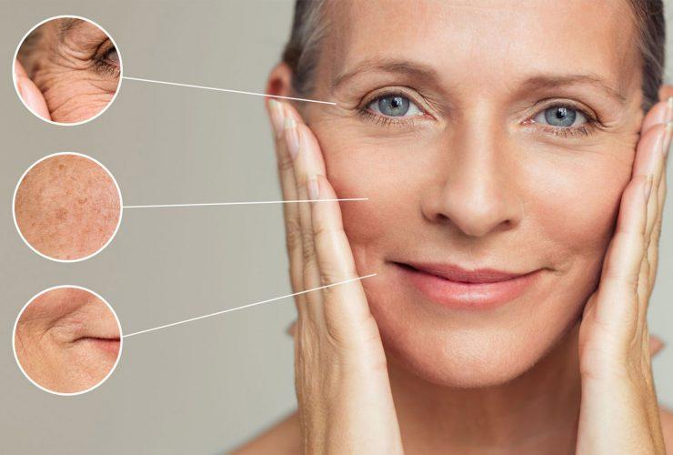 Botox That Should Surprise You